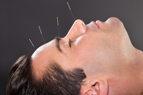 What should i do after my acupuncture treatment to take care of what should i do after my acupuncture treatment to take care of myself solutioingenieria Image collections